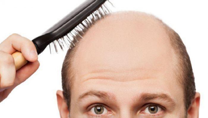 queda-de-cabelo